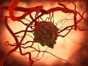 Figure 7. Artist's representation of a tumor and its blood supply