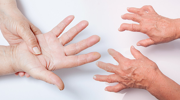 Rheumatoid-Arthritis-and-Cancer-Connection.jpg (620×345)